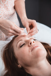 Is Cosmetic Acupuncture Effective on Wrinkles? Part 2 of 2