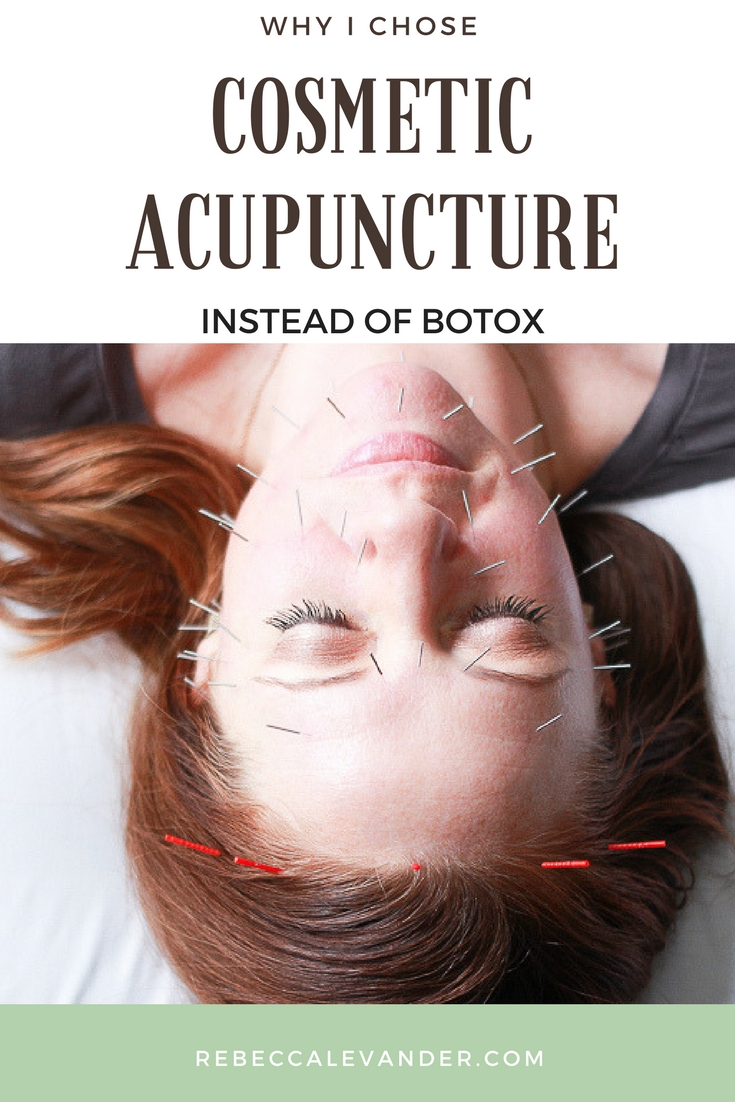 Is cosmetic acupuncture effective on wrinkles? Part 1 of 2